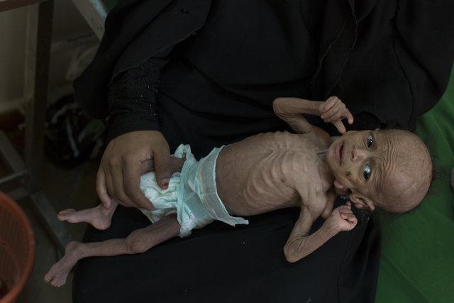 سازمان ملل: میلیونها یمنی از نبود امنیت غذایی رنج میبرند